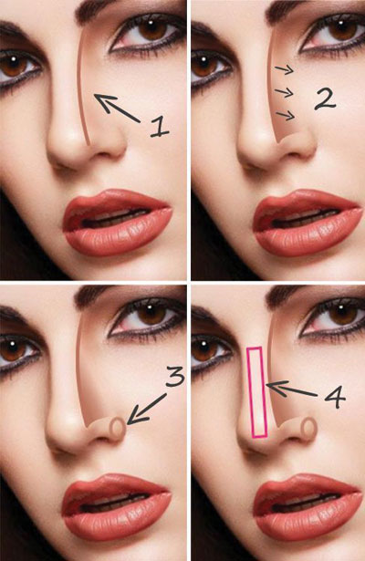 鼻梁在哪个位置图解