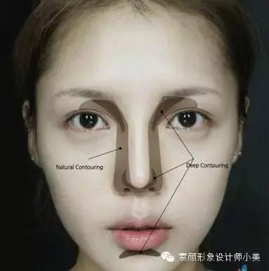 很多塌鼻子姑娘一心追求高鼻效果